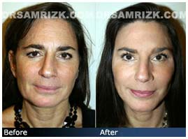 Additional Before & After Photos: 50 year old female patient