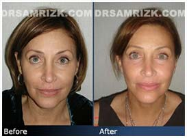Additional Before & After Photos: 54 year old female patient