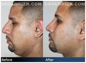 Additional Before & After Photos: 33 year old Latino male patient