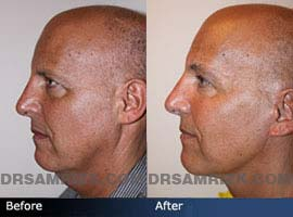 male necklifts before after photos