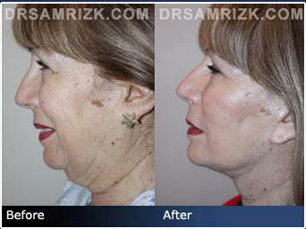 Click Here View Our Gallery - Before and After photos: 67 year old female