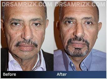 Click Here View Our Gallery - Before and After photos: 62 year old male