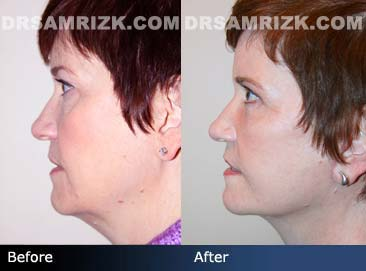 face lift with necklift before after photo