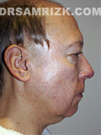 Photo - Before Treatment - Facelift: 55 year old male patient (right side view)