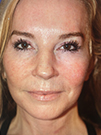 Photo Gallery: Facelift - After Treatment, 48 year old woman (left side view)