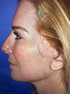 Photo Gallery: Facelift - After Treatment, 48 year old woman (right side view)