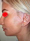 Photo Gallery: Facelift - After Treatment, 40 year old patient (left side view)
