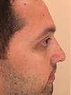 Photo Gallery: Facelift - After Treatment, Patient has a history of nasal fracture injury (left side view)