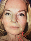Photo Gallery: Facelift - Before Treatment, 48 year old woman (left side view)