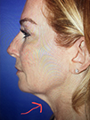 Photo Gallery: Facelift - Before Treatment, 48 year old woman (right side view)