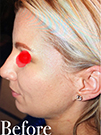 Photo Gallery: Facelift - Before Treatment, 40 year old patient (left side view)