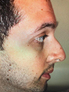 Photo Gallery: Facelift - Before Treatment, Patient has a history of nasal fracture injury (left side view)
