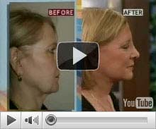 Video: A Patient's success story with short scar rapid recovery facelift/necklift surgery with our doctor, featured on fox 5
